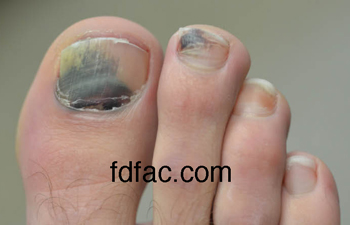 Toe Nail Blood Blisters